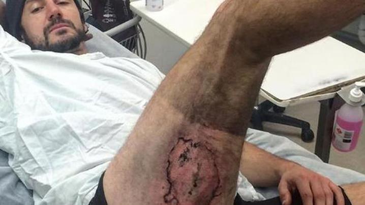 homme brule troisieme degre par son iphone6 suite une chute - Un australien brûlé au troisième degré par son iPhone 6